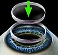 Cornea implant