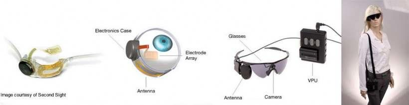 Articial Retinal Biotic Implant