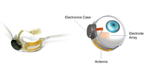 Bionic eye implant devices